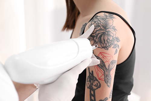 PicoSure Tattoo Removal in Altoona, Pennsylvania