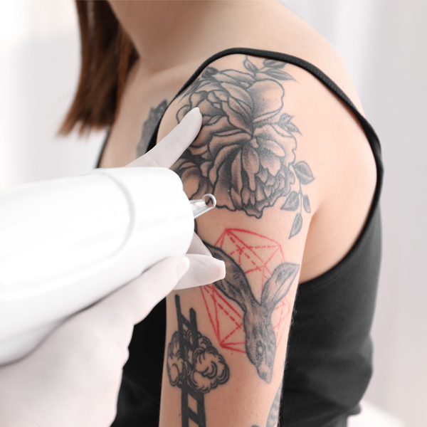 Tattoo Removal Specialist - Altoona, PA - Expert PicoSure Tattoo Removal